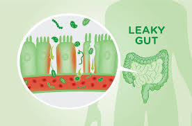 Leaky Gut Syndrome ....7 Signs YOU May Have It!