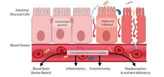 Leaky Gut Treatment