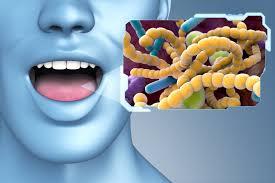 Probiotic for Periodontal Disease