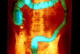VSL#3 Induces Remission for Ulcerative Colitis