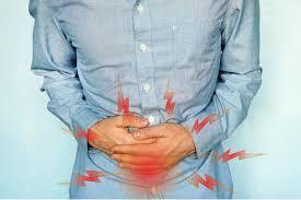 VSL#3 for Ulcerative Colitis