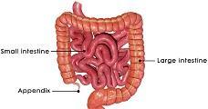 Colitis (Ulcerative Colitis)